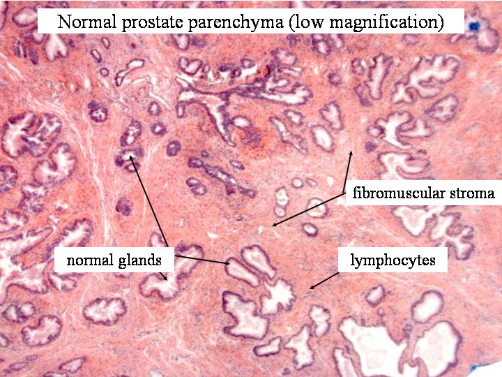 Chinese herbal remedy prostate prostate supplement guide